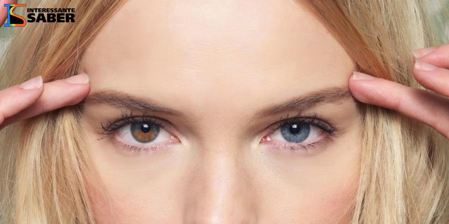 A atriz e modelo Kate Bosworth tem o olho direito parcialmente marrom, já o esquerdo completamente azul.