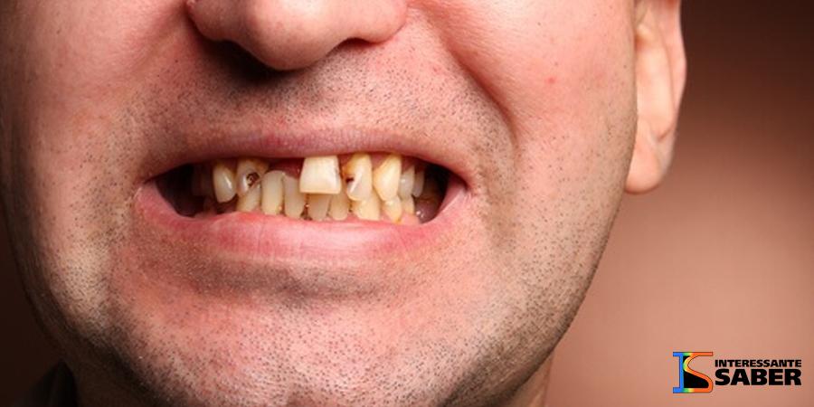 Veja o que acontece se você ficar 1 ano sem escovar os dentes