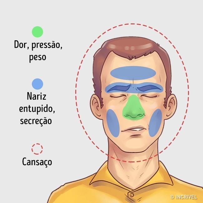 Dor de cabeça nos seios da face
