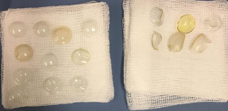 27 lentes de contato foram encontradas em olho de senhora