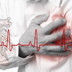Não quer ter um ataque cardíaco? Aprenda com os franceses, japoneses e coreanos