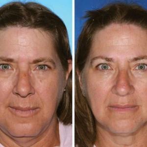 7 Gêmeos idênticos mostram os efeitos de fumar na aparência