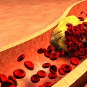Colesterol alto atinge mais da metade dos adultos brasileiros