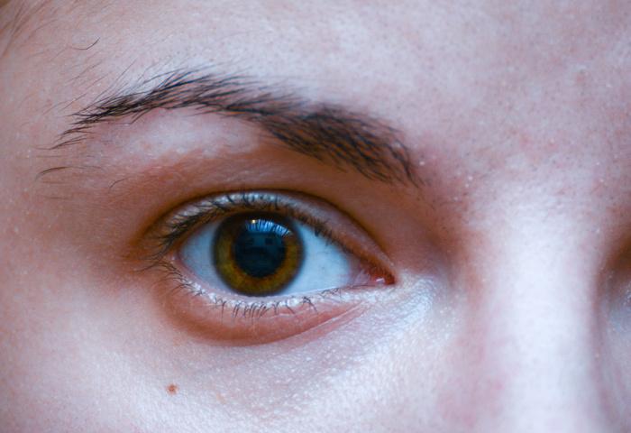 Por que as olheiras surgem quando dormimos mal?