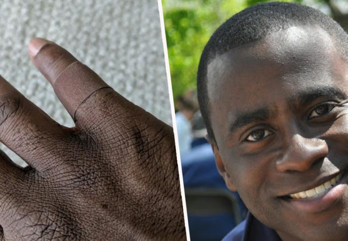 Conheça o homem negro que se emocionou ao encontrar um curativo da cor de sua pele