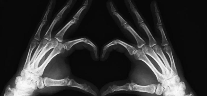 Curiosidades sobre a chapa de raio x