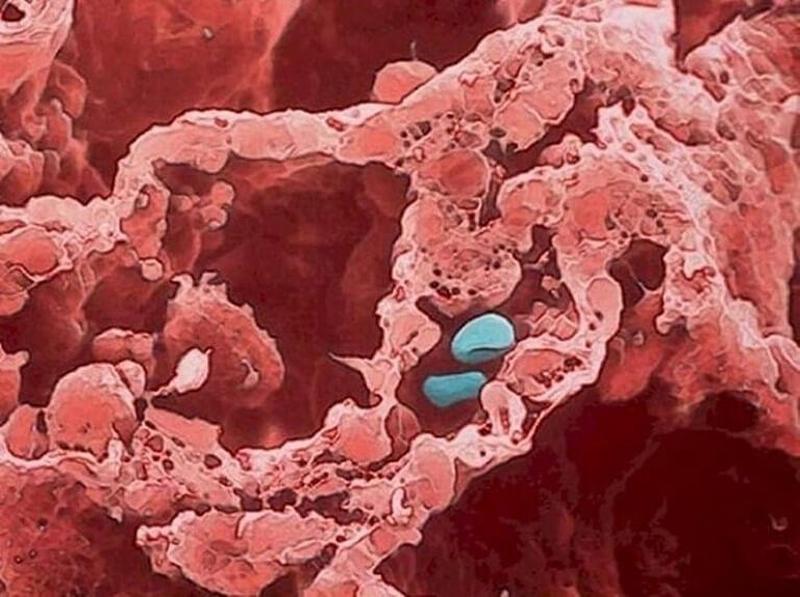 Alvéolos com dois glóbulos vermelhos (pintados de azul)