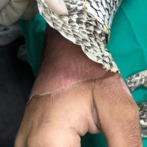 Pele de tilápia é usada em tratamento de queimaduras em hospital do Rio