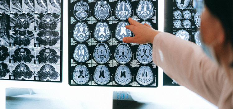 6 vezes em que a inteligência artificial foi essencial na radiologia